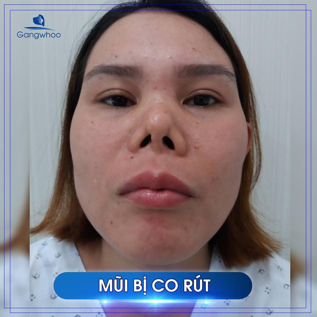 khách hàng sửa mũi hỏng vì mũi bị co rút