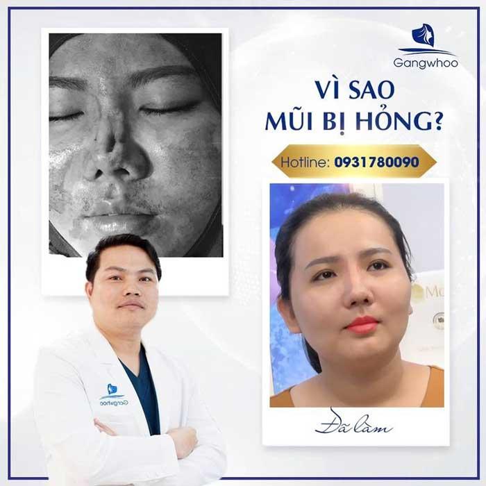 Sửa Mũi Hỏng Sau Phẫu Thuật Uy Tín Tốt Nhất Ở TPHCM 2021 1