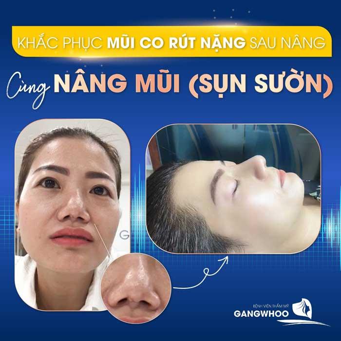 Sửa Mũi Hỏng Sau Phẫu Thuật Uy Tín Tốt Nhất Ở TPHCM 2021 7