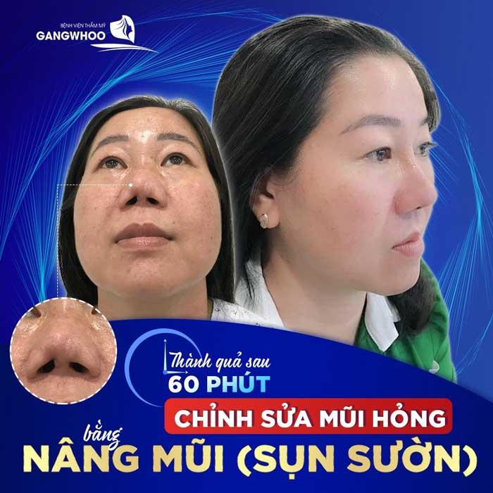 Sửa Mũi Hỏng Sau Phẫu Thuật Uy Tín Tốt Nhất Ở TPHCM 2021 5