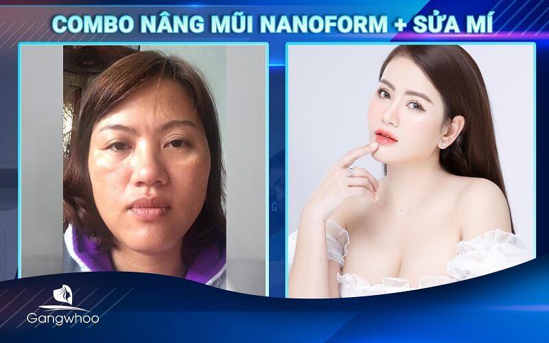 """""""lột xác"""" với combo mắt mũi tại TMV Gangwhoo"""