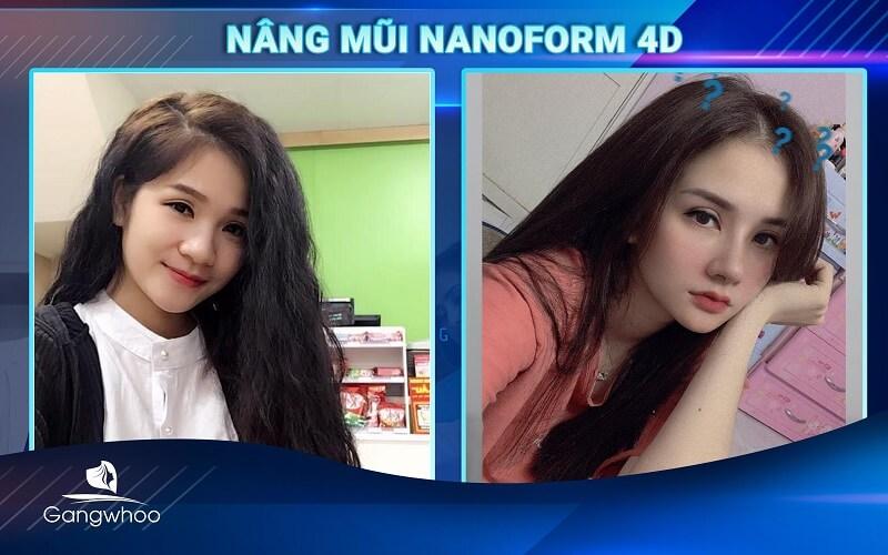 thay đổi diện mạo với nâng mũi nanoform