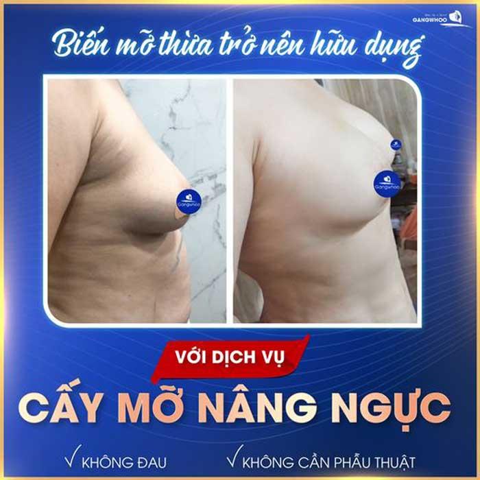 Cấy Mỡ Nâng Ngực - Nâng Ngực Không Phẫu Thuật 3