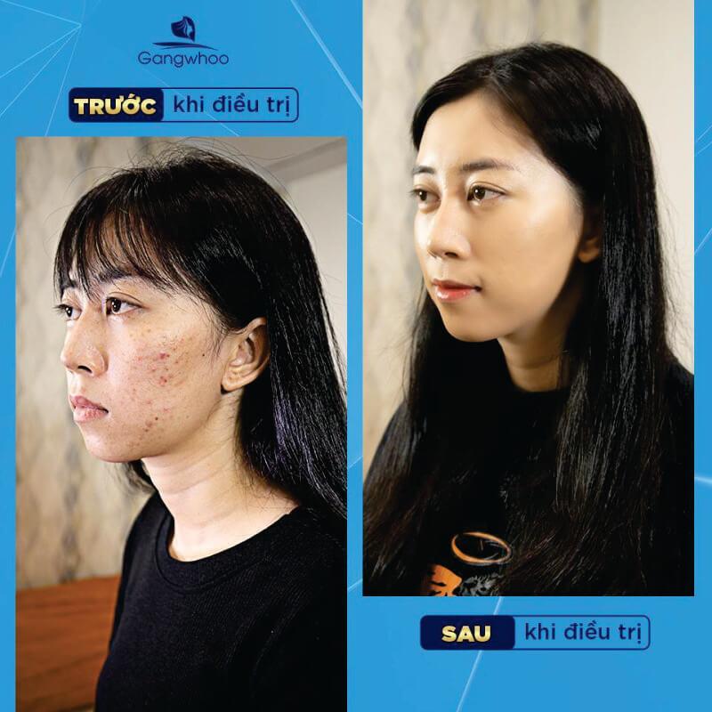 Điều trị mụn tận gốc tại TMV Gangwhoo