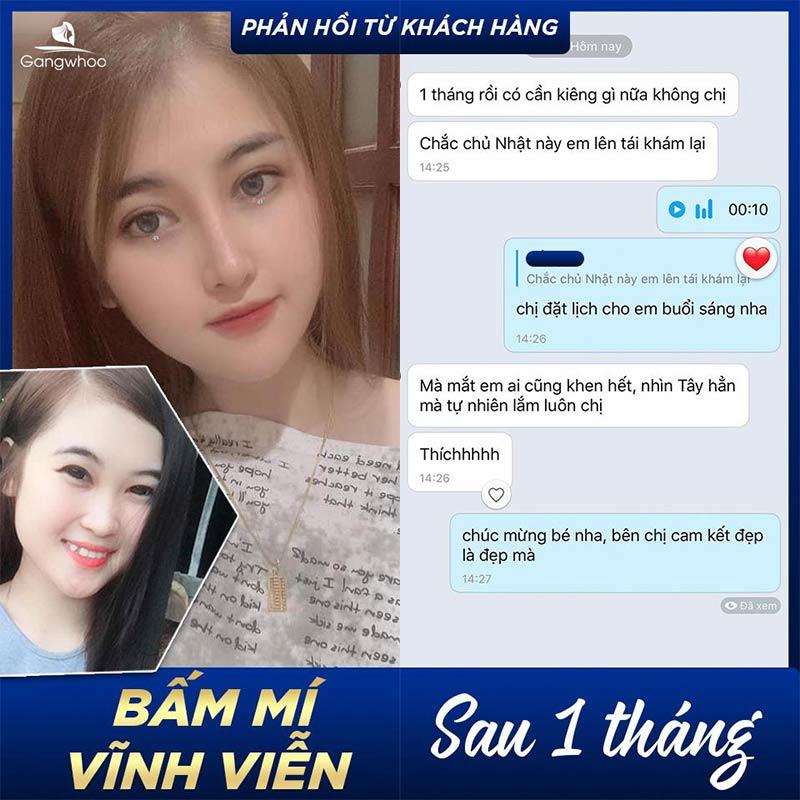Feedback của khách hàng sau khi bấm mí vĩnh viễn 1 tháng tại TMV Gangwhoo