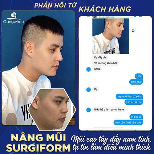 Feedback của khách hàng sau khi nâng mũi surgiform tại TMV Gangwhoo