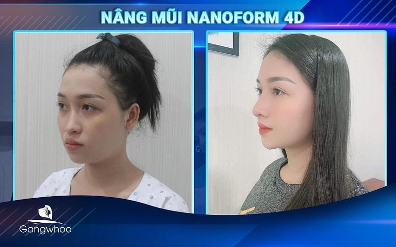 Nét mặt sang trọng, quý phái nhờ chiếc mũi nanoform