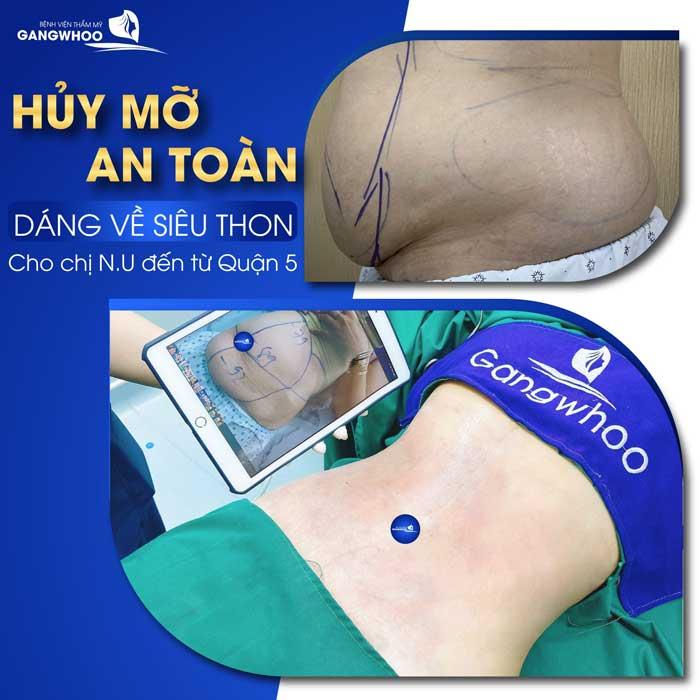 Công Nghệ Giảm Mỡ Lipo Ultrasound Giảm Ngay Lần Đầu 3