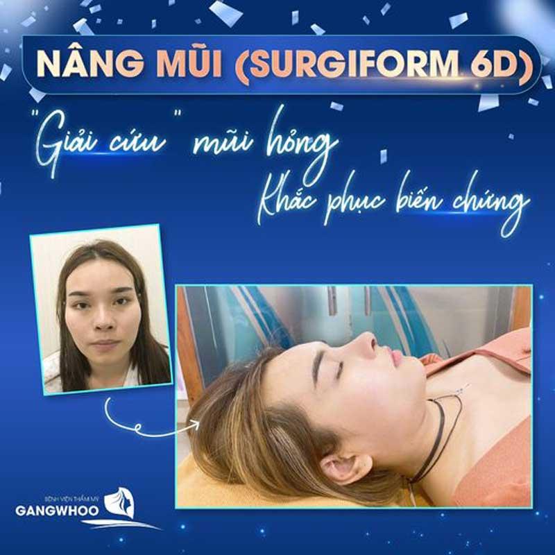 Nâng Mũi (Surgiform) Cho Dáng Mũi Thanh Tú Tự Nhiên 20