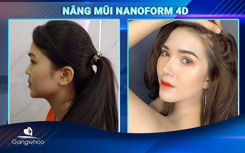 """khách hàng """"biến hóa"""" cùng mũi nanoform 4D tại TMV Gangwhoo"""