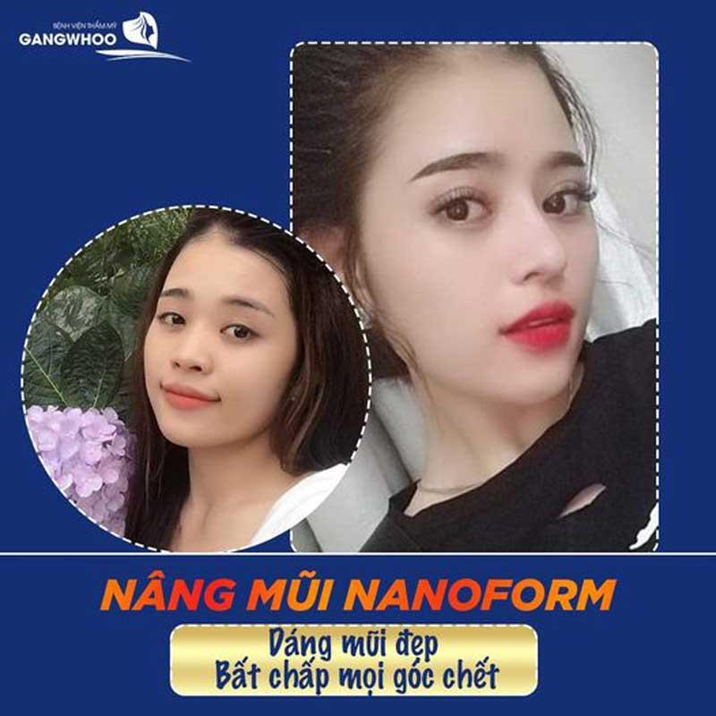 Nâng mũi (Nanoform) Độc Quyền Tốt Nhất TPHCM 2021 5