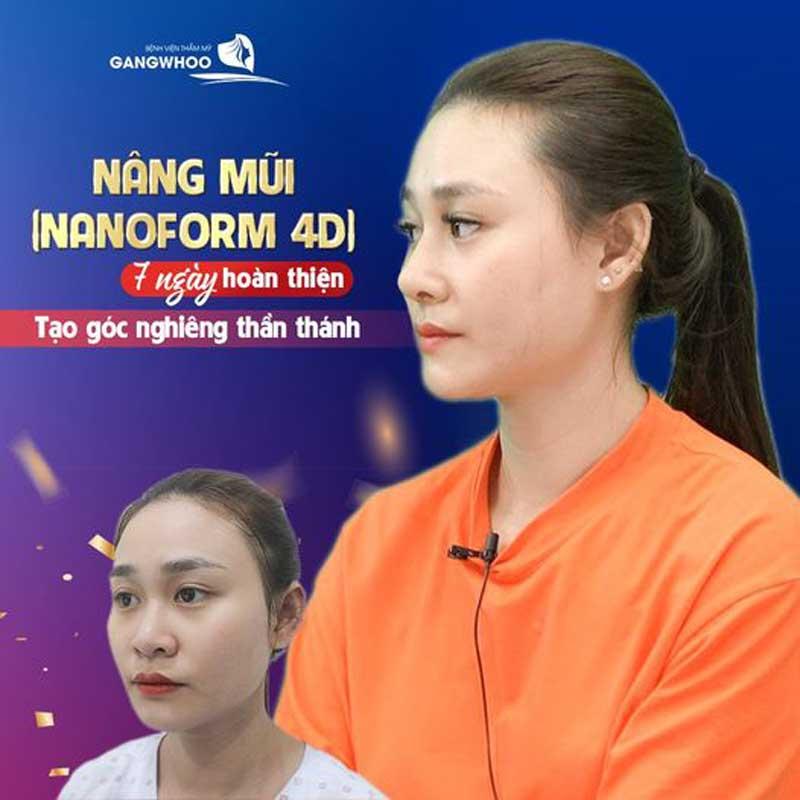 Nâng mũi (Nanoform) Độc Quyền Tốt Nhất TPHCM 2021 4