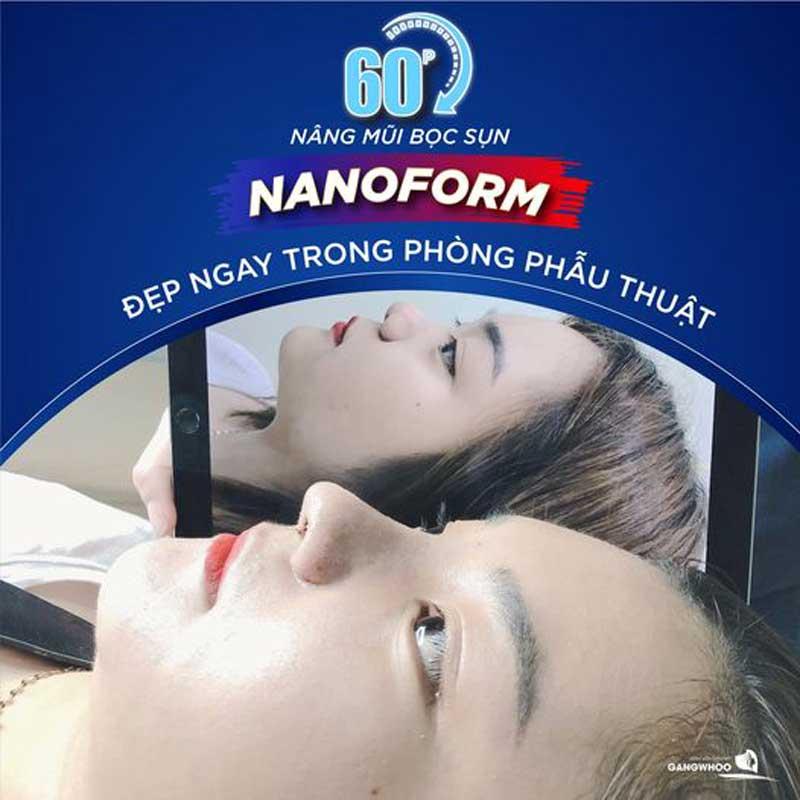 Nâng mũi (Nanoform) Độc Quyền Tốt Nhất TPHCM 2021 3