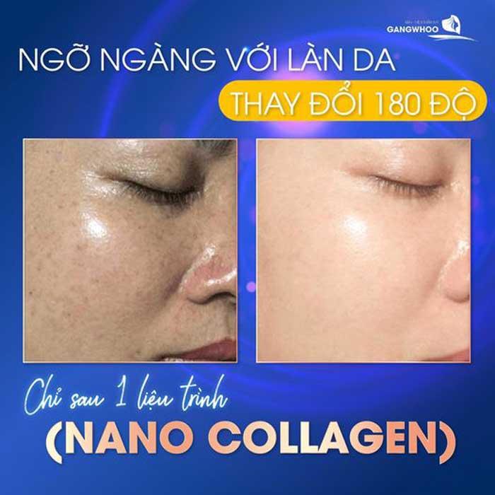 Trẻ Hóa Da (Nano Collagen) 1