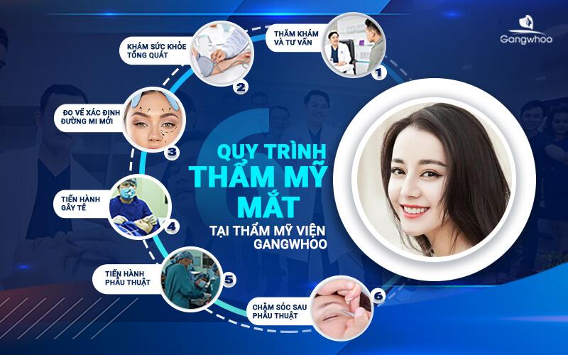 quy trình cắt mí mắt tại TMV Gangwhoo