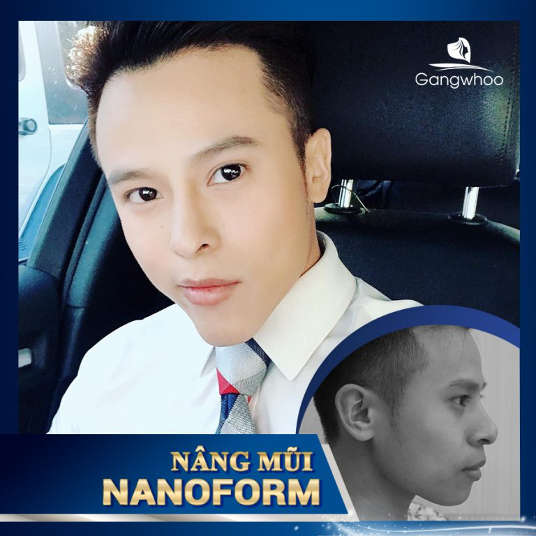 Sửa mũi nam giới Nanoform