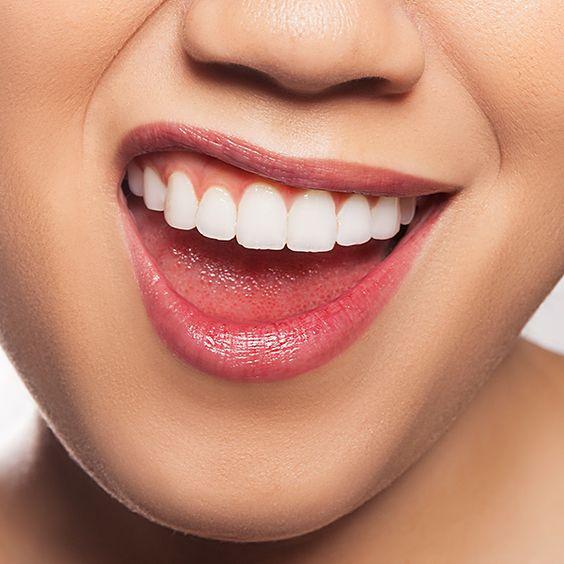 Top 5 cách làm trắng răng ở nhà