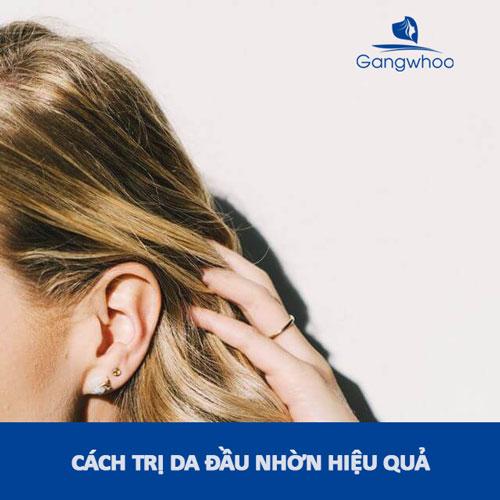 cách trị da đầu nhờn hiệu quả