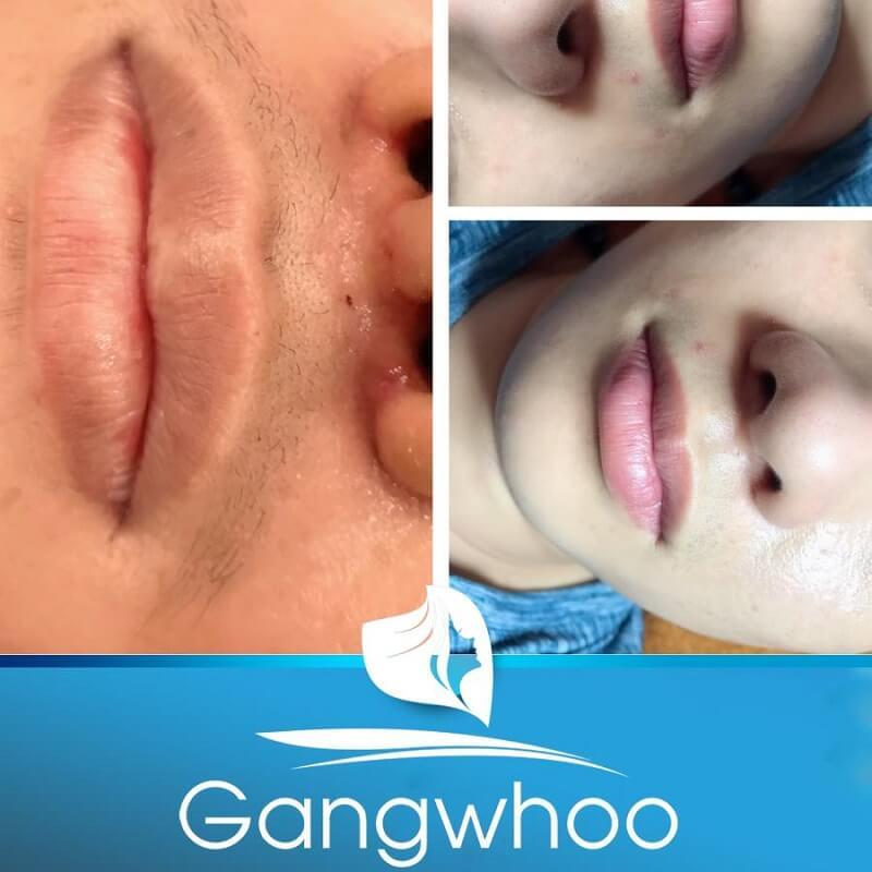 khách hàng khử thâm môi