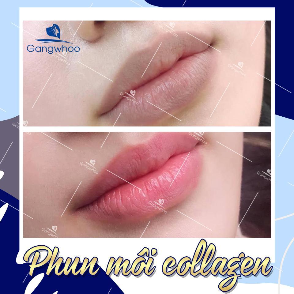 Khử thâm môi, môi hồng hào rạng người