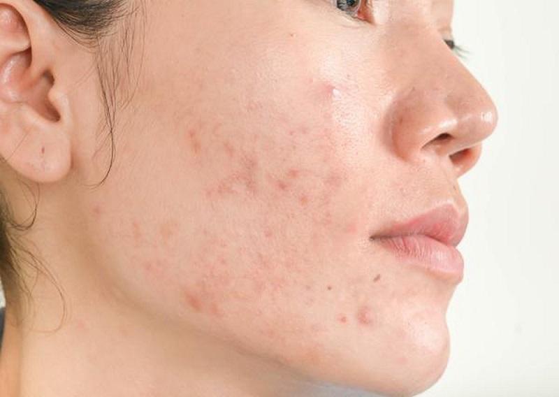 da mụn nên điều trị da bằng công nghệ skin get