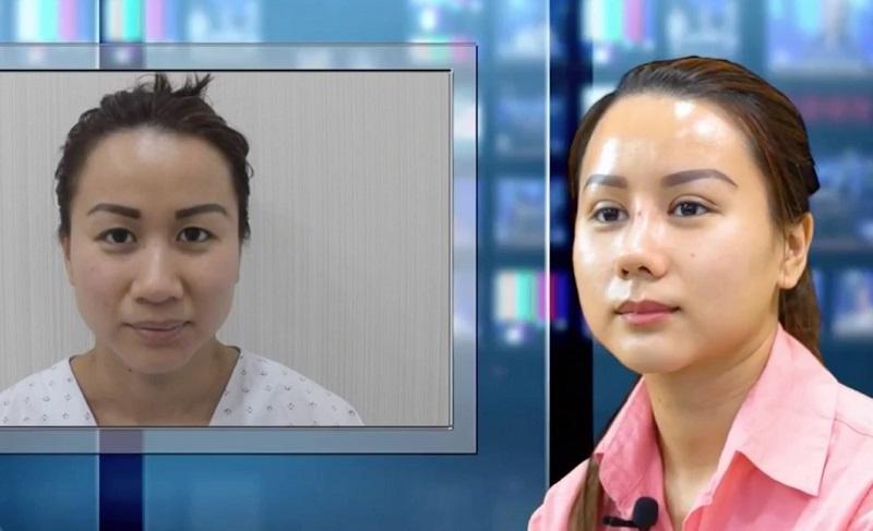 Bác sĩ nâng mũi giỏi cho Việt Kiều ở Việt Nam