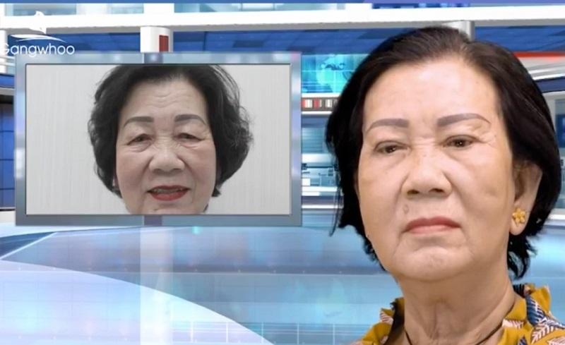 cô Thị Nở chọn Gangwhoo là địa chỉ nâng mũi uy tín dành cho việt kiều