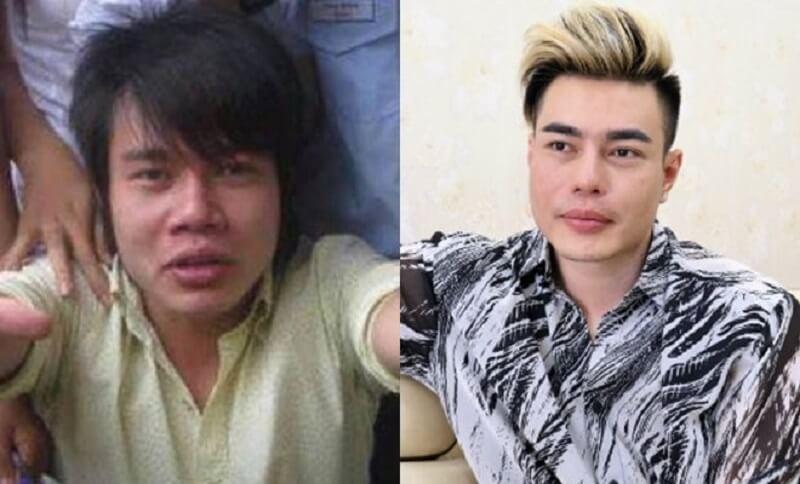 Lê Dương Bảo Lâm trước và sau khi phẫu thuật thẩm mỹ