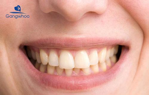 Răng ố vàng là do đâu?