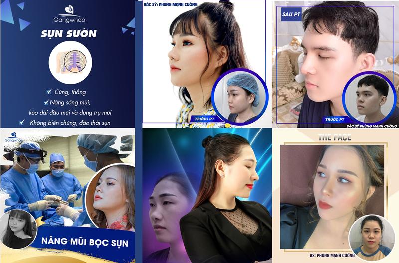 Nâng mũi sụn sườn kết hợp với công nghệ gây tê Plus độc quyền của bác sĩ Phùng Mạnh Cường tại Thẩm mỹ viện Gangwhoo