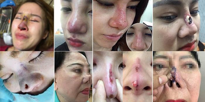 Thẩm mỹ viện Gangwhoo chuyên sửa mũi hỏng, mắt hỏng