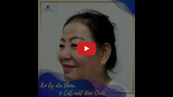 Cắt Da Thừa Mí Trên Qua Chân Mày 2