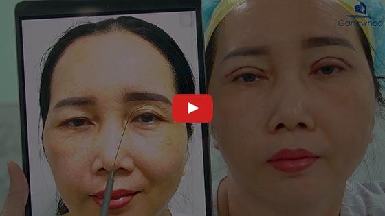 """Cắt Mí 4 Trong 1 Plasma Đôi Mắt Đẹp Chuẩn Từng """"Centimet"""" 3"""