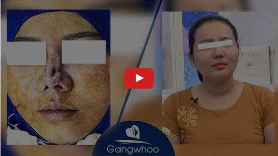 Nâng Mũi Đẹp Hot Trend TPHCM 2020 - Thẩm mỹ viện Gangwhoo 17