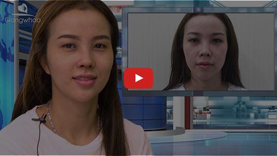 "Nâng Mũi Cấu Trúc SLine & LLine - Sửa Mũi Đẹp ""Triệu Like"" TPHCM 2020 2"