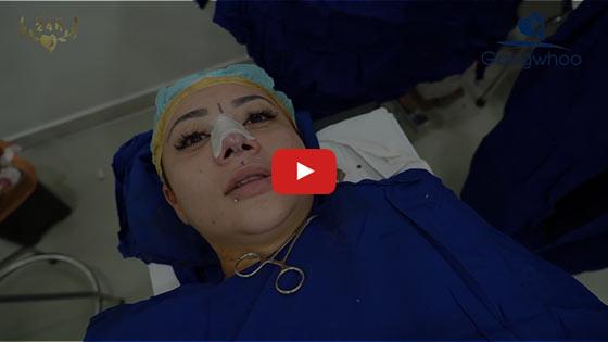 "Nâng Mũi Cấu Trúc SLine & LLine - Sửa Mũi Đẹp ""Triệu Like"" TPHCM 2020 3"