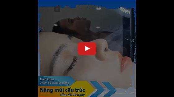 "Nâng Mũi Cấu Trúc SLine & LLine - Sửa Mũi Đẹp ""Triệu Like"" TPHCM 2021 3"