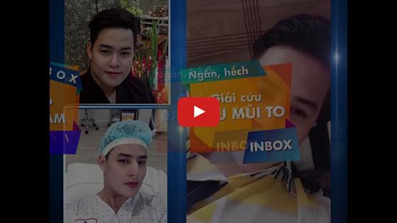 "Nâng Mũi Cấu Trúc SLine & LLine - Sửa Mũi Đẹp ""Triệu Like"" TPHCM 2020 1"