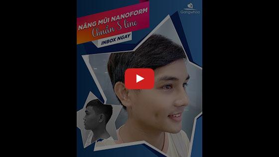 Nâng Mũi Nam Giới Dáng L-Line Hóa Nam Thần HOT 2020 1