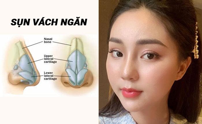 Dùng sụn vách ngăn để nâng mũi