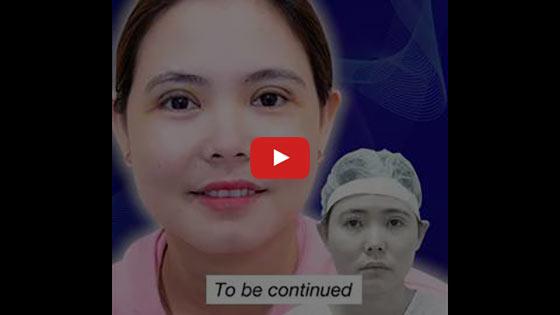 Review Địa Chỉ Sửa Mí Mắt Hỏng Tốt Nhất Tại TPHCM 3
