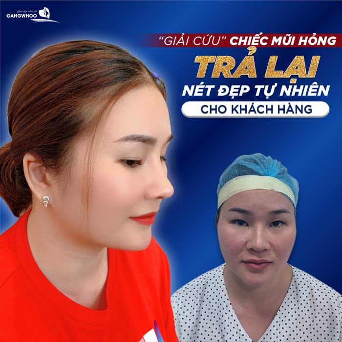 Sửa Mũi Hỏng Sau Phẫu Thuật Uy Tín Tốt Nhất Ở TPHCM 2021 10