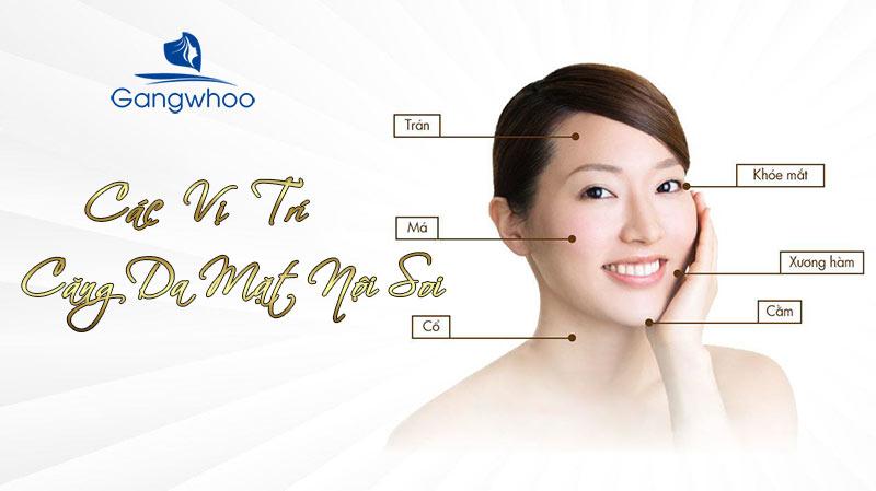 Các vị trí căng da mặt nội soi