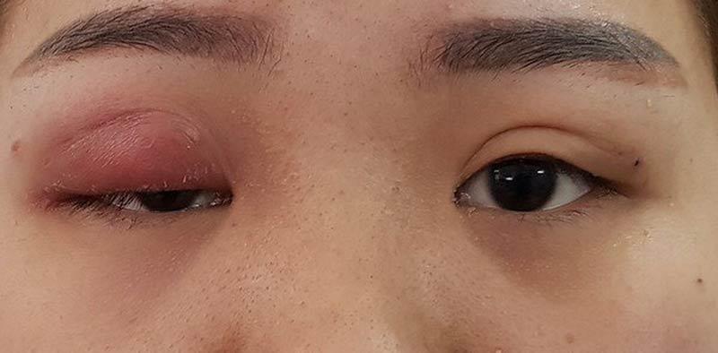 cắt mí mắt bị mưng mủ là tình trạng cắt mí mắt hỏng gây mất thẩm mỹ và nguyên hiểm cho mắt