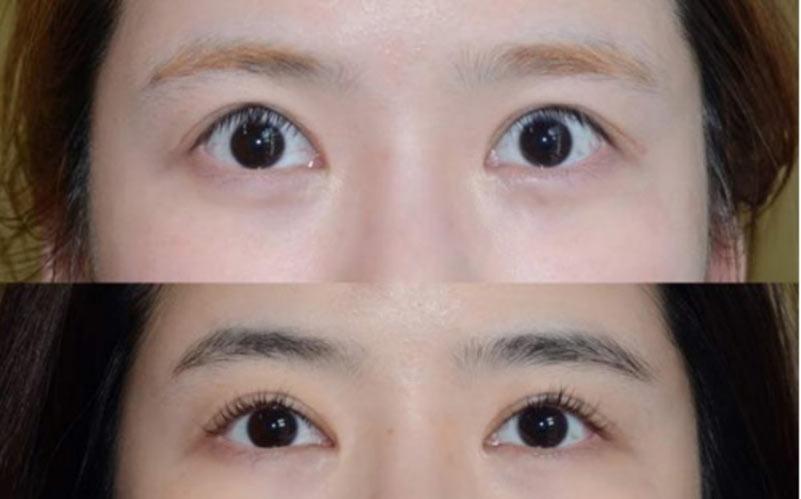 cắt mí mặt bị trợn là tình trạng cắt mí mắt hỏng mà nhiều người gặp phải