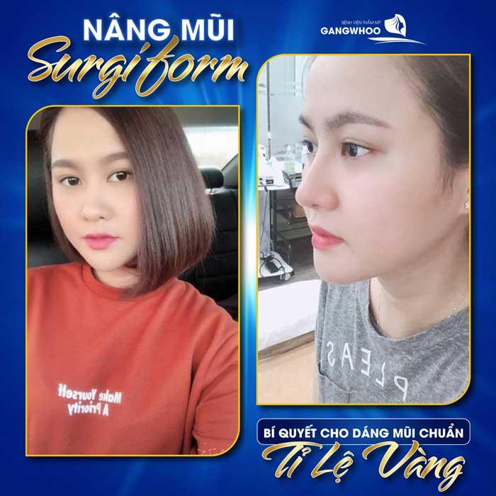 Nâng Mũi (Surgiform) Cho Dáng Mũi Thanh Tú Tự Nhiên 18
