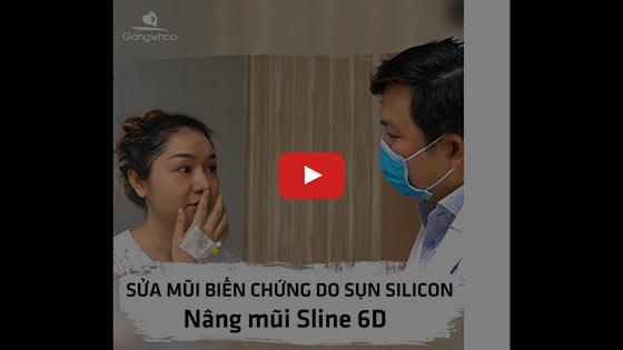 Sửa Mũi Hỏng Sau Phẫu Thuật Uy Tín Tốt Nhất Ở TPHCM 2020 5