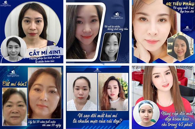 Khách hàng cắt mí mắt tại Thẩm mỹ viện Gangwhoo