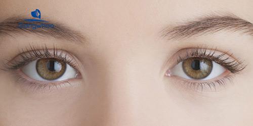 Cắt mí mắt có hại không? phụ thuộc vào tay nghề bác sĩ