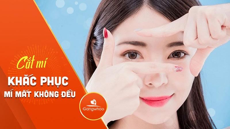 Gangwhoo Địa Chỉ Sửa Cắt Mí Mắt Không Đều Uy Tín Tại TPHCM